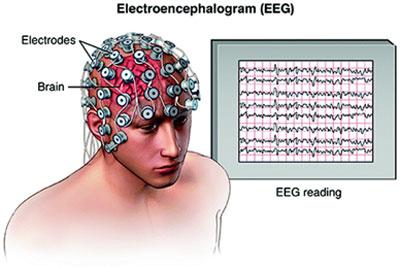 ,Nöropazarlama Elektroensefalografi (EEG) yöntemi