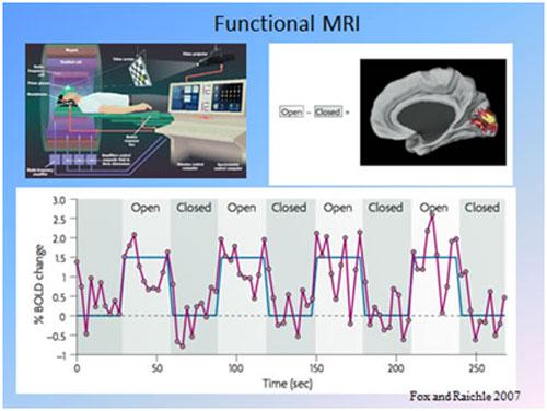 Fonksiyonel Manyetik Rezonans Görüntüleme(fMRI) Yöntemi