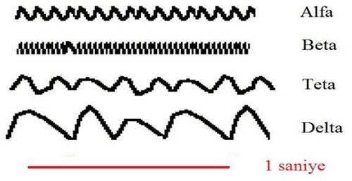 EEG dalgaları