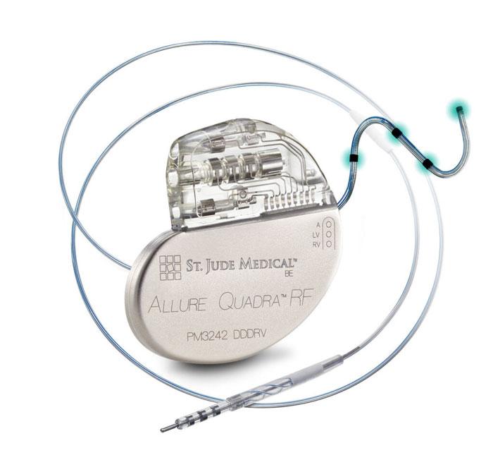 Metallik malzeme implant nedir?