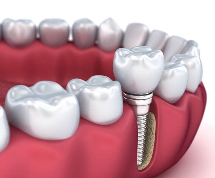 İmplant nedir? Diş implantı