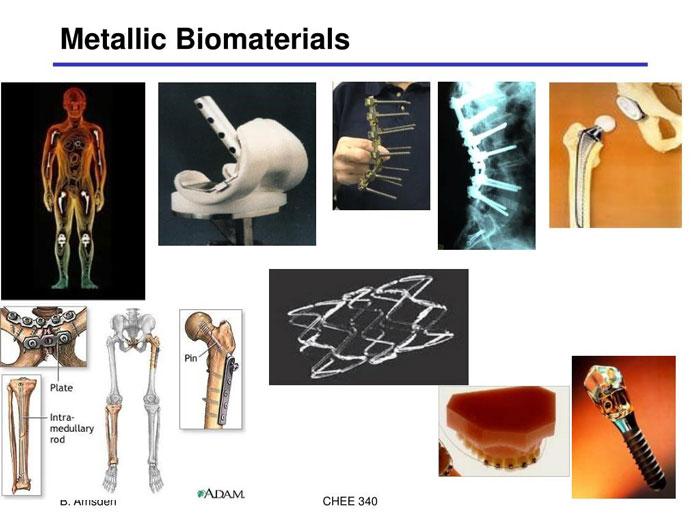 Metalik biyomalzeme nedir?