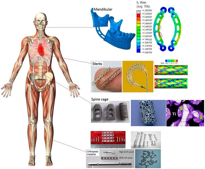 metallik biyomalzeme nedir? İmplant ve Platin