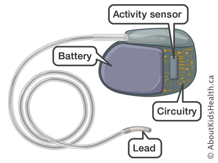 Pacemaker kısımları