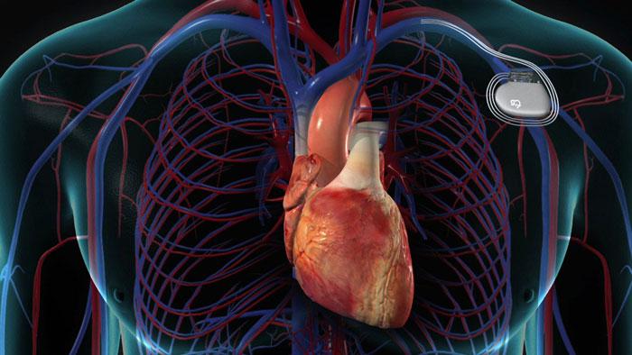 Pacemaker nedir? Neden Kullanılır?