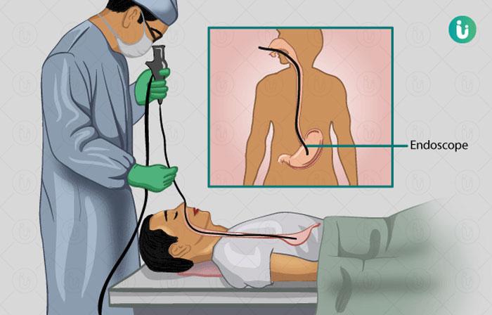 Endoskopi yapilmasinin nedeni?