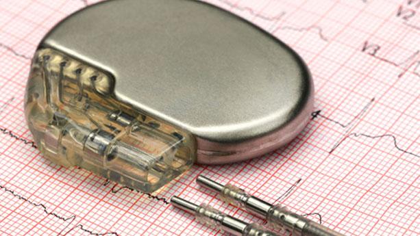 Pacemaker Nedir? Kalbin Çalışma Hızını Ayarlayan Piller