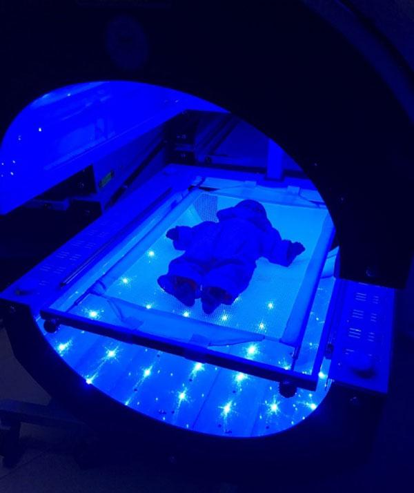 Sarılık tedavisi Fototerapi